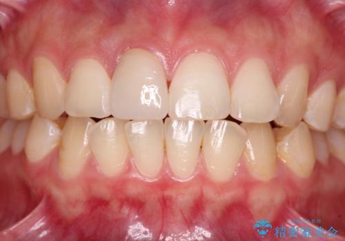 転倒して欠けてしまった前歯をオールセラミッククラウンで自然な口元にの治療後