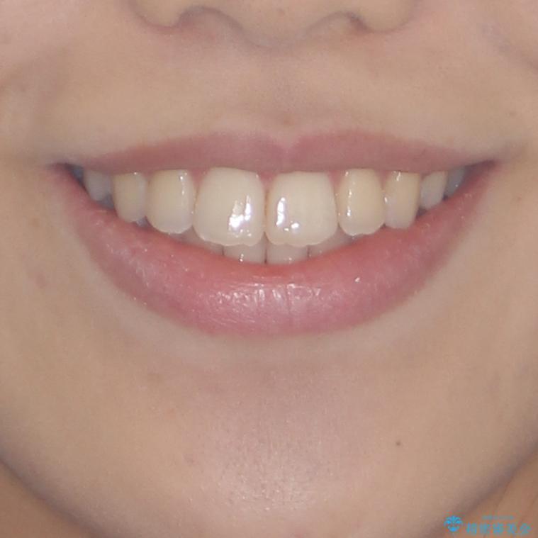 上顎骨拡大を用いたインビザラインによる非抜歯矯正の治療後(顔貌)