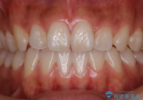 歯磨きをしてもザラつく感じをツルツルにしたいの治療前