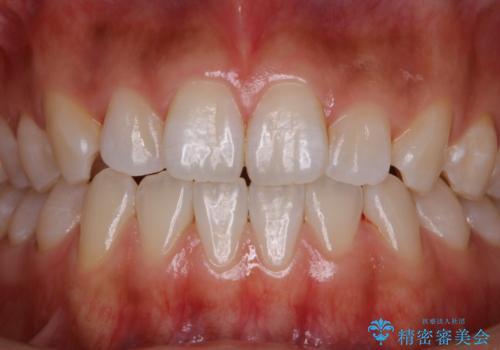 歯磨きをしてもザラつく感じをツルツルにしたいの治療後