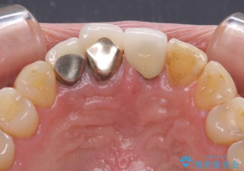 抜かなければいけない前歯 歯肉移植を用いたオールセラミックブリッジの治療前