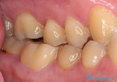 海外赴任前に気になる虫歯を治療したいの治療後