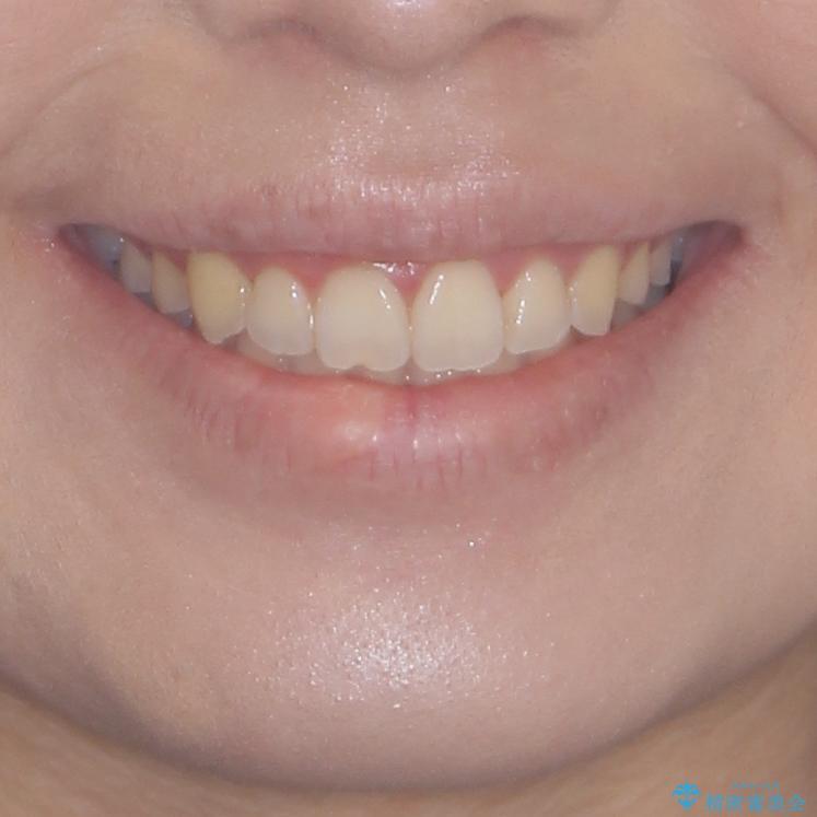 前歯のデコボコをインビザラインでスッキリとの治療後(顔貌)