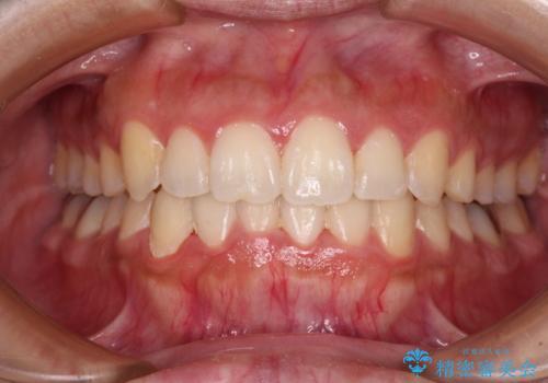 前歯のデコボコをインビザラインでスッキリとの症例 治療後