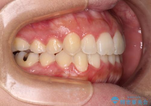 前歯のデコボコをインビザラインでスッキリとの治療後
