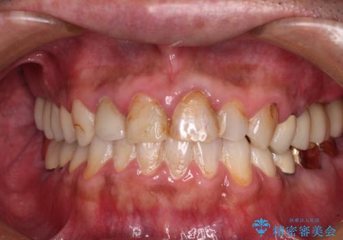 抜歯が必要な左右の奥歯 ブリッジとインプラントによる奥歯の補綴治療の症例 治療後