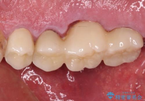 抜歯が必要な左右の奥歯 ブリッジとインプラントによる奥歯の補綴治療の治療後