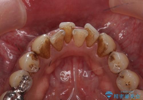 タバコによるヤニ、着色、歯の汚れをPMTC(60分コース)で除去。の治療前