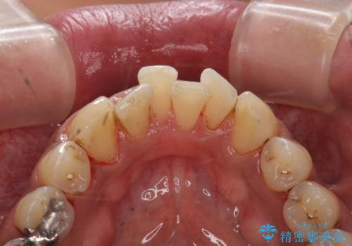 タバコによるヤニ、着色、歯の汚れをPMTC(60分コース)で除去。の治療後