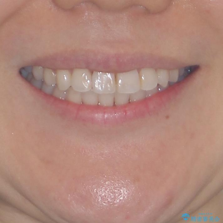 長年気にしていた前歯 インビザラインで目立たず改善の治療後(顔貌)