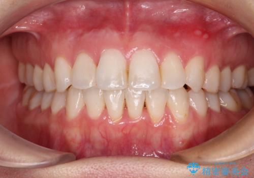 長年気にしていた前歯 インビザラインで目立たず改善の症例 治療後