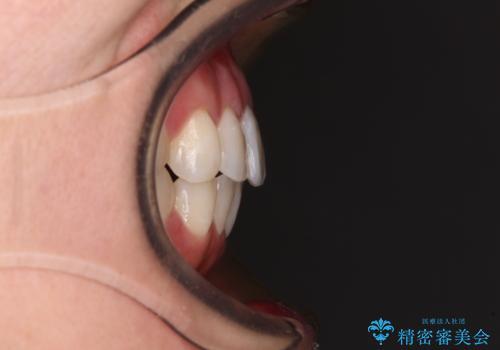 長年気にしていた前歯 インビザラインで目立たず改善の治療後