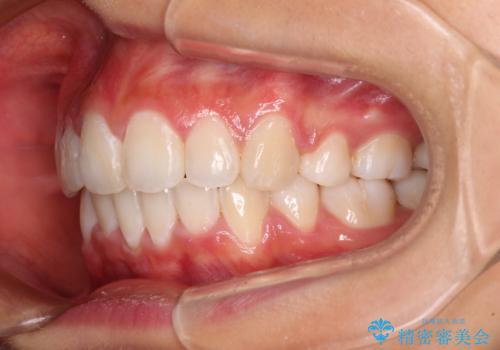 口元の突出感を改善 2年弱での抜歯矯正の治療後