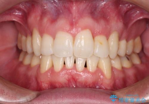 ものが挟まる 著しい叢生を解消 ワイヤー装置による抜歯矯正の症例 治療後