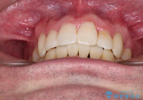 ものが挟まる 著しい叢生を解消 ワイヤー装置による抜歯矯正の治療後