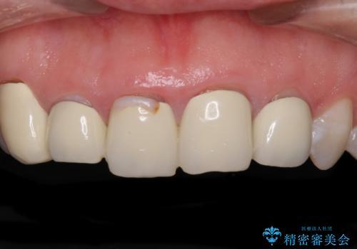 不揃いな前歯のセラミックが気になる オールセラミッククラウンによる補綴治療の治療前