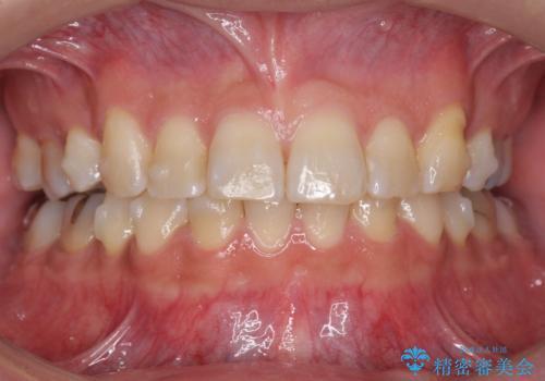 前歯だけ治したい インビザライン・ライト 30代男性の治療中