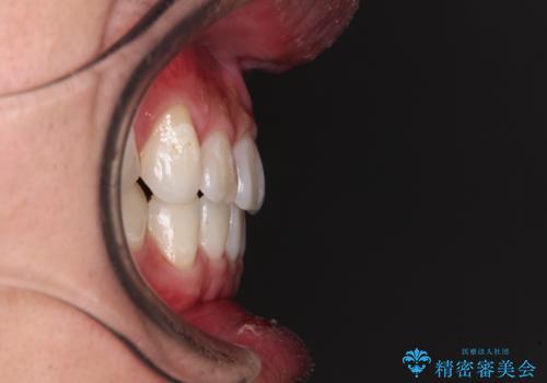 【モニター】 インビザライン・ライトによる軽微叢生の矯正治療の治療後