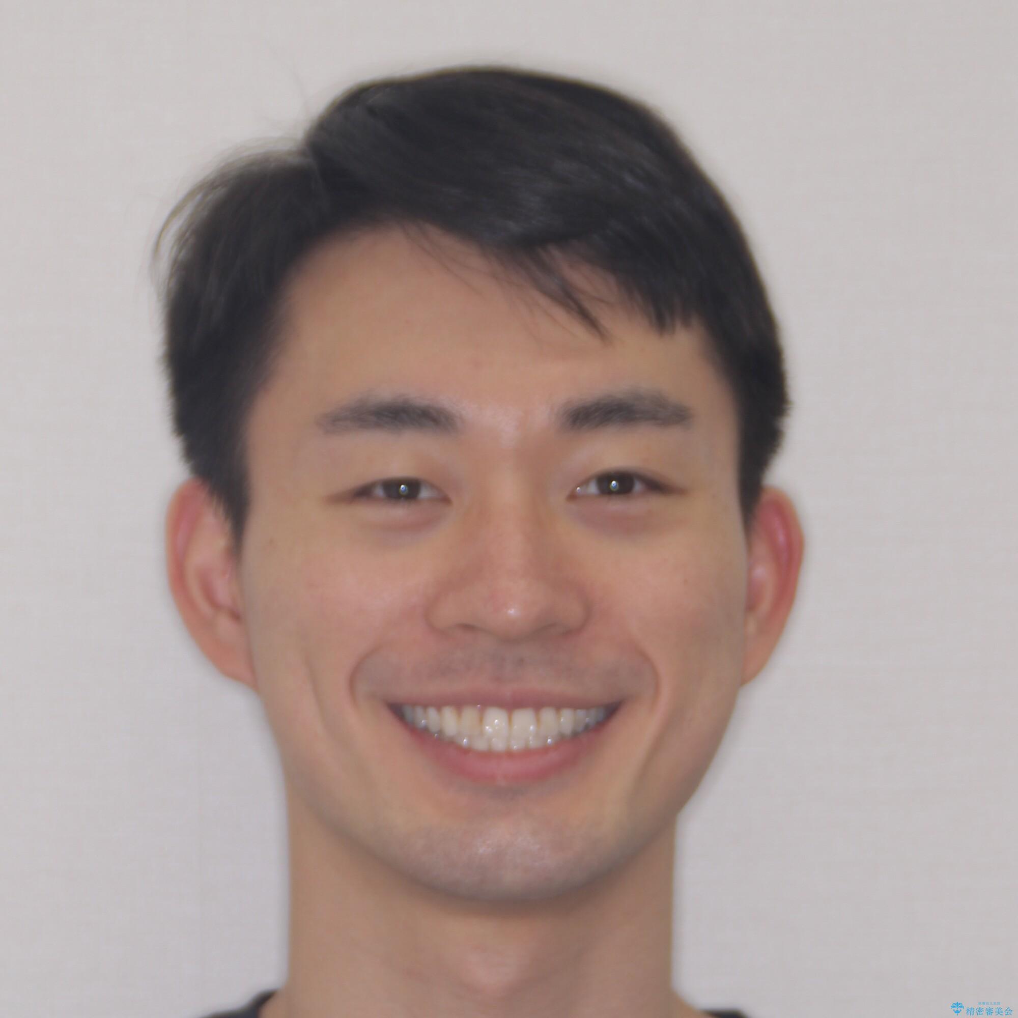 【モニター】 インビザライン・ライトによる軽微叢生の矯正治療の治療後(顔貌)
