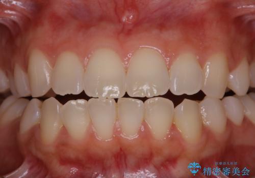 親知らずの抜歯前にPMTCの治療前