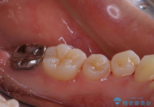 親知らずの抜歯前にPMTCの治療後