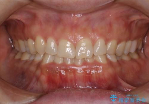 歯を自然な白さにしたい(スペシャルホワイトニング)の治療前