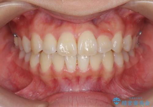 [インビザライン]  前歯のガタつき・すれ違い マウスピース矯正治療の症例 治療後