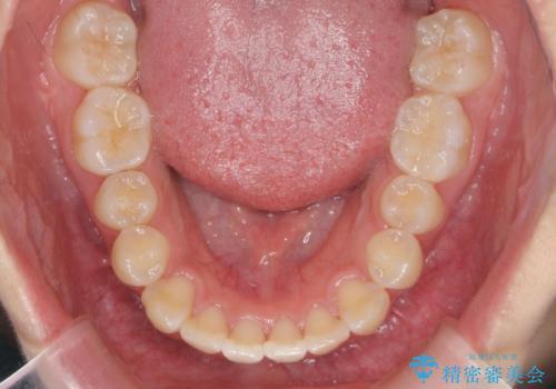 [インビザライン]  前歯のガタつき・すれ違い マウスピース矯正治療の治療後