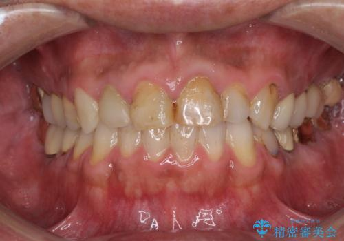 抜歯が必要な左右の奥歯 ブリッジとインプラントによる奥歯の補綴治療の症例 治療前