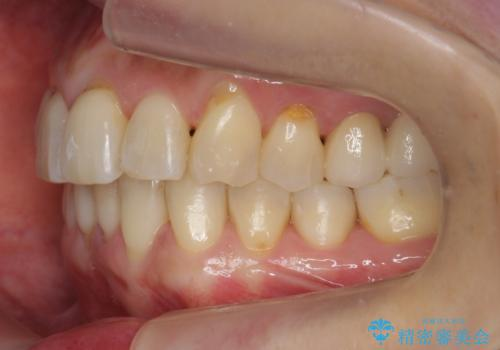 前歯が反対になっている マウスピース矯正+奥歯ブリッジの治療後