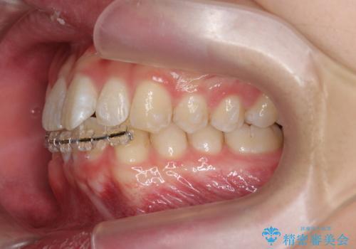 [ Three-incisor ]  歯肉退縮した歯を抜去しマウスピース治療で改善の治療中