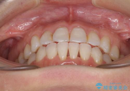 長年気にしていた前歯 インビザラインで目立たず改善の治療中