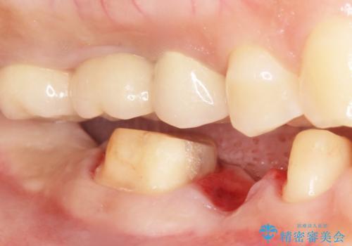 歯が折れた 低予算でオールセラミックのブリッジ 20代女性の治療中