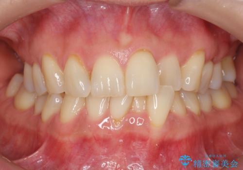 前歯が反対になっている マウスピース矯正+奥歯ブリッジの治療前