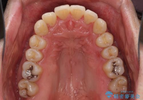 下顎骨が顕著に右側にずれている インビザラインによる咬合改善の治療中