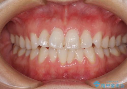 長年気にしていた前歯 インビザラインで目立たず改善の症例 治療前