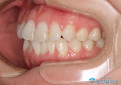 長年気にしていた前歯 インビザラインで目立たず改善の治療前