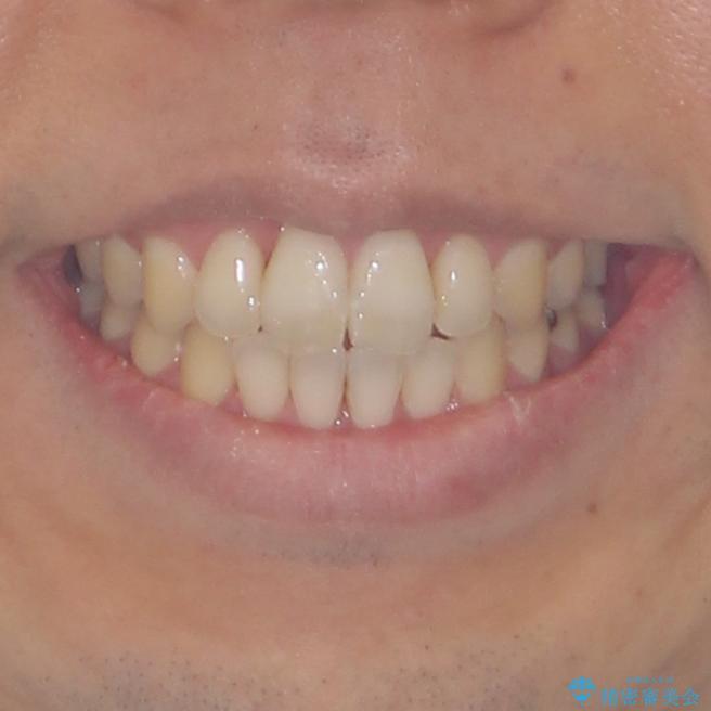 上下前歯が接触しない ワイヤー装置による奥歯の咬み合わせ改善の治療後(顔貌)
