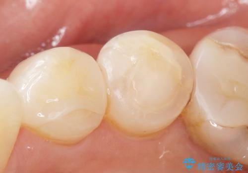 歯が欠けて舌が引っかかる セラミックインレー 50代女性の治療後