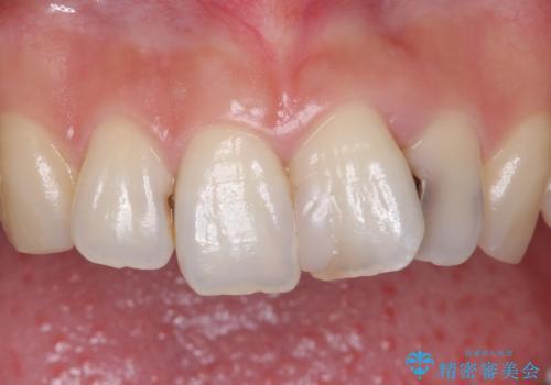 前歯をきれいにしたい 20代女性の治療前