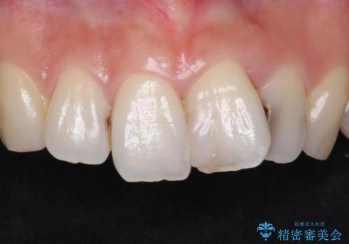 前歯をきれいにしたい 20代女性の症例 治療前