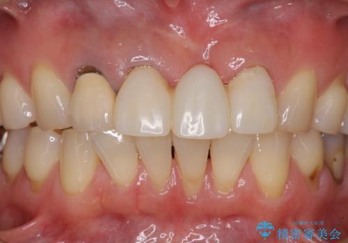抜かなければいけない前歯 歯肉移植を用いたオールセラミックブリッジの治療中