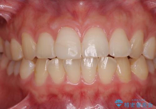 転倒して欠けてしまった前歯をオールセラミッククラウンで自然な口元にの治療前