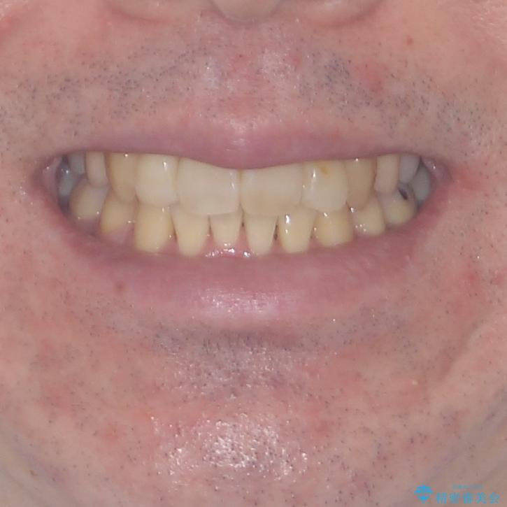 ものが挟まる 著しい叢生を解消 ワイヤー装置による抜歯矯正の治療後(顔貌)