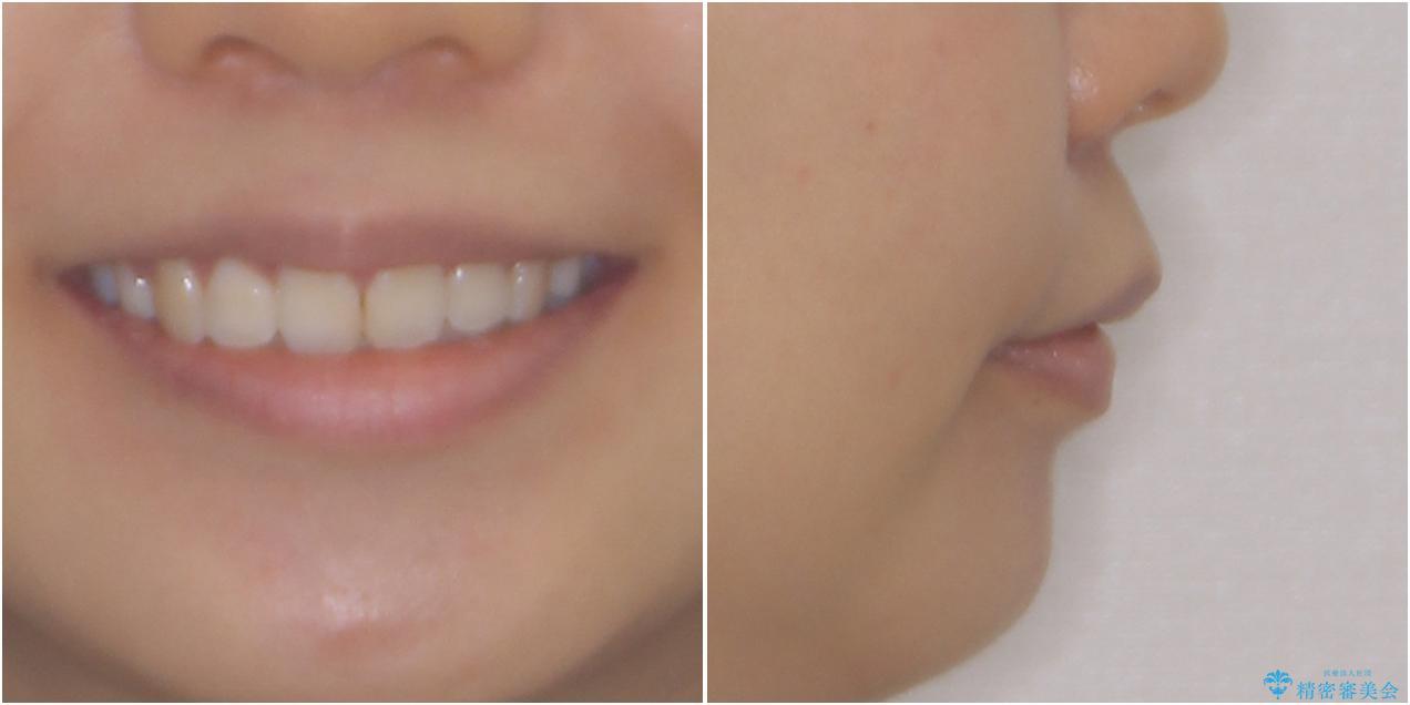 口元の突出感を改善 2年弱での抜歯矯正の治療後(顔貌)