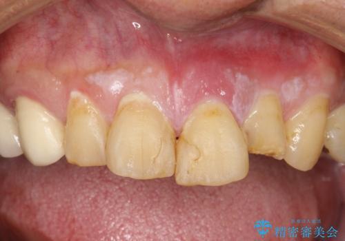 折れた前歯を使えるように、抜かないで残す方法。の治療前