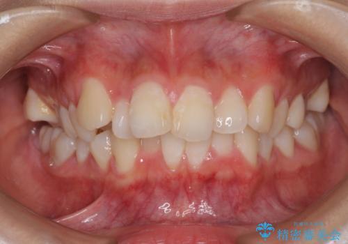 口元の突出感を改善 2年弱での抜歯矯正の症例 治療前