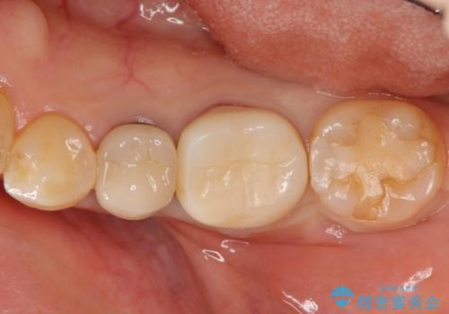 [ 歯牙破折 ]  違和感のある大臼歯 ブリッジ治療の治療前