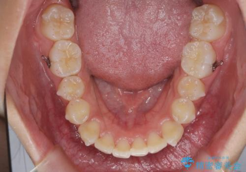 [インビザライン]  前歯のガタつき・すれ違い マウスピース矯正治療の治療中