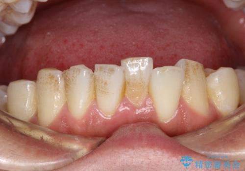 タバコのヤニを取って歯を白くしたいの治療前